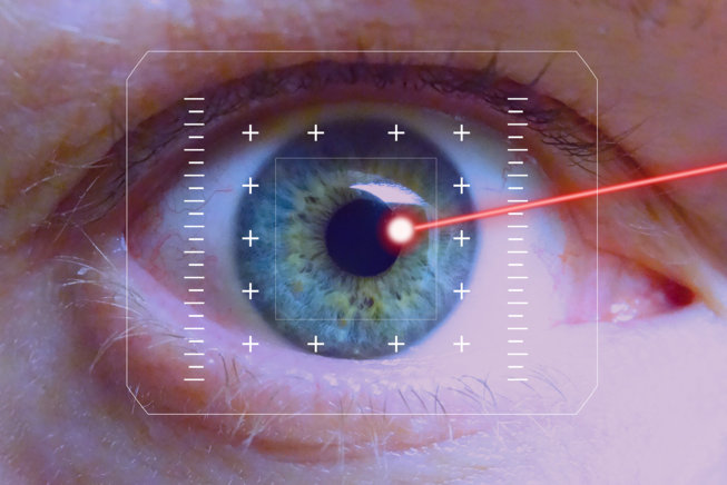 The laser in the treatment of the glaucoma: three uses