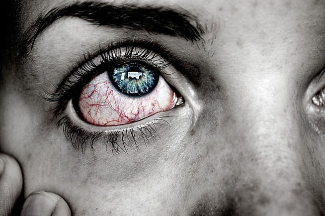What is the flu of the eyes?